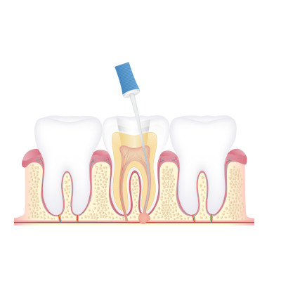 Reviews for dentist FARA DENTAL CARE in Chennai, Tamil Nadu, India